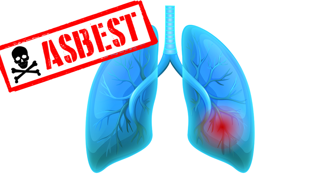 Asbestfasern sind Krebserregend | AsbestProfi Darmstadt